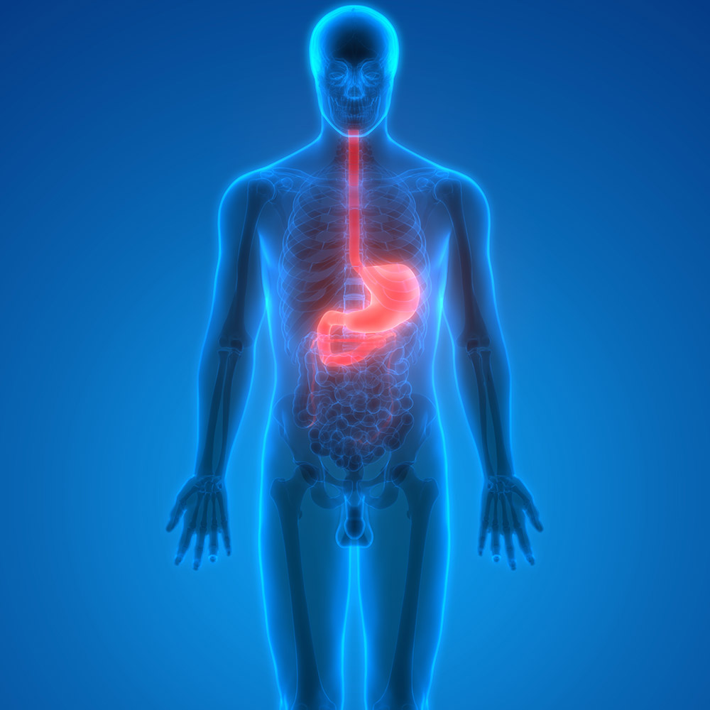Irritable bowel syndrome - Chasing the Cure