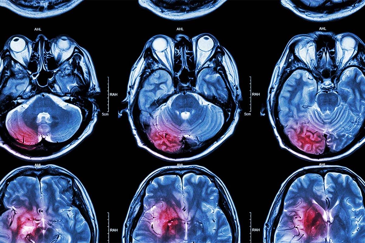 Departments V K Neurocare & Trauma Research Hospital, Hisar